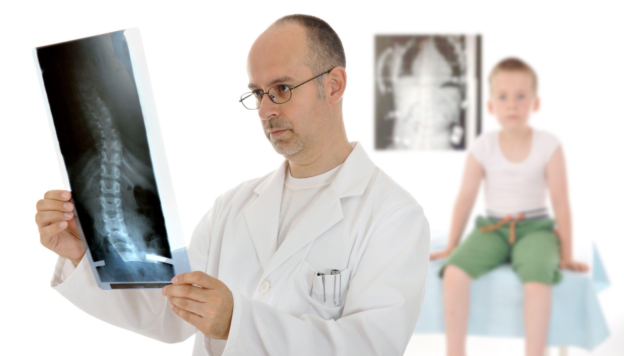Методы лечения искривления позвоночника 2 степени